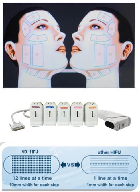 Maquina de 4D HIFU