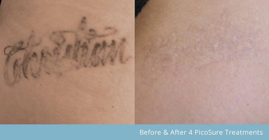 eliminación de tatuajes con láser picosure