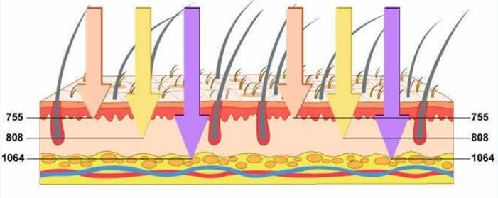 máquina de depilación láser de diodo